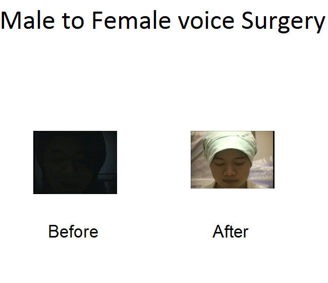 Voice change surgery for transsexuals